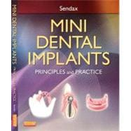 Mini Dental Implants : Principles and Practice,9781455743865