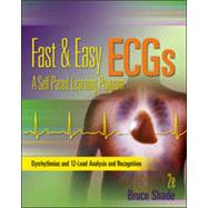 Pocket Guide for Fast and Easy Ecgs,9780077394028