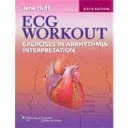 ECG Workout; Exercises in Arrhythmia Interpretation,9781451115536