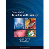 Essentials in Total Hip Arthroplasty,9781556428708