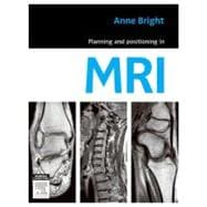 Planning and Positioning in MRI,9780729539852